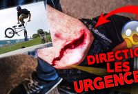 GROSSE BLESSURE EN BMX ! BMX DEATH CRASH !