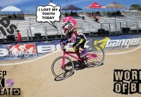 """""""Little Girl Looses a Tooth"""" """"BMX Race"""""""