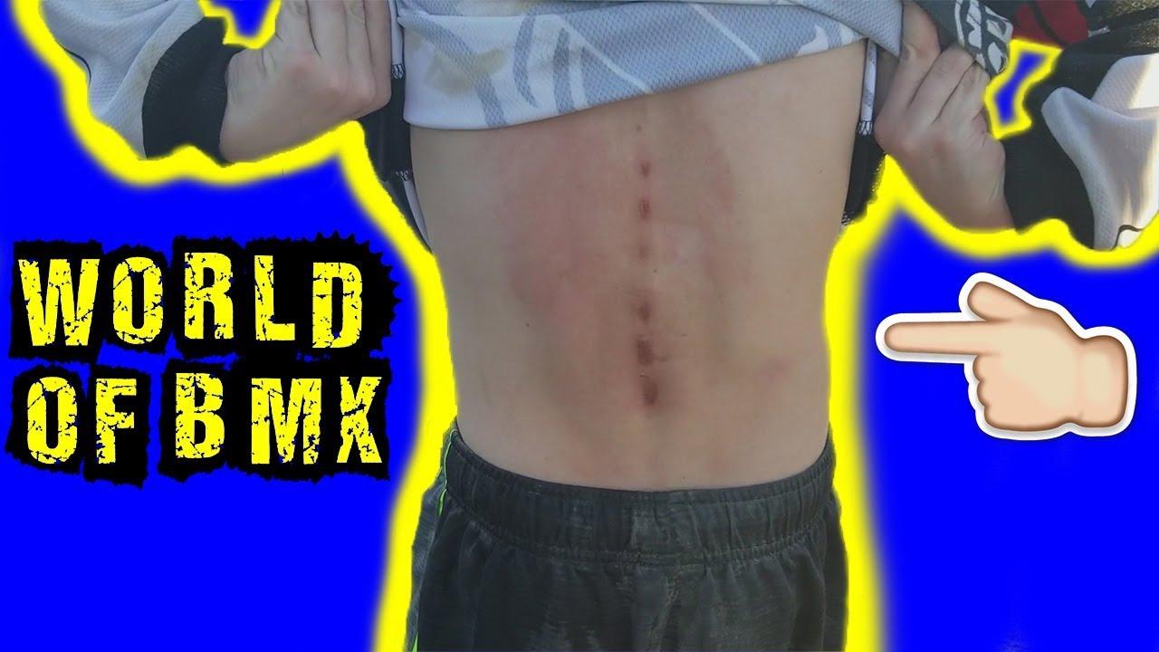 Spinal BMX Race